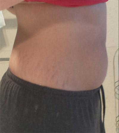 8 Weeks after birth